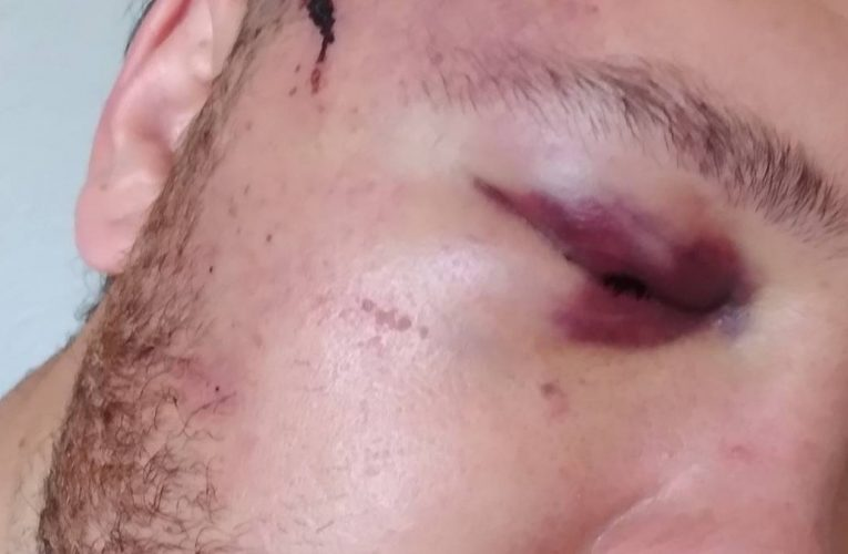 Family with granny set upon by armed thugs at 1am in central Auckland