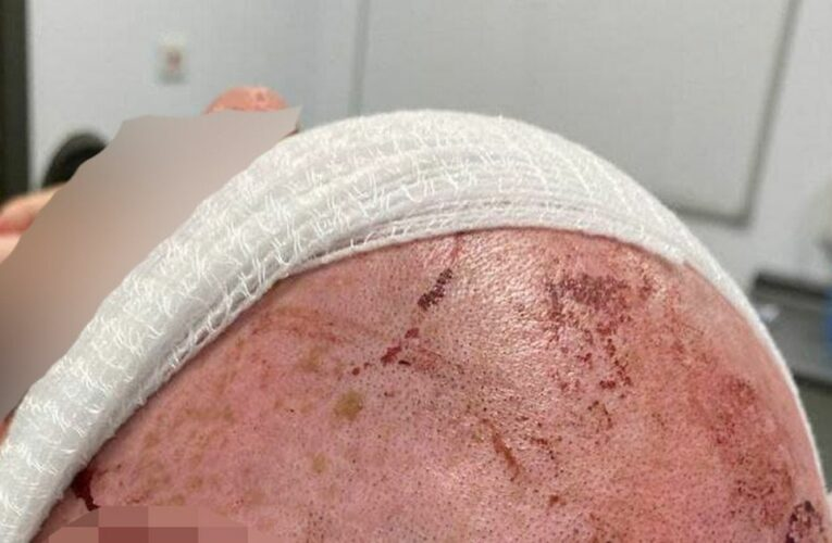 Man beaten with shovels and has ear torn off after confronting badger baiters