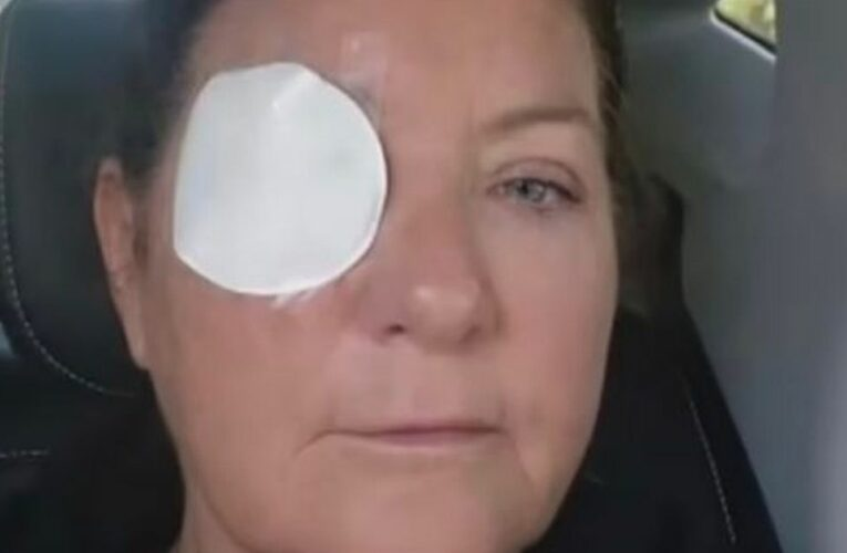 Woman trying to share breakfast with hungry bird gets pecked in the eye